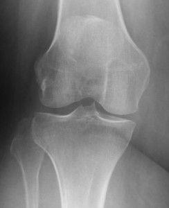 normal-adult-knee-crop-244x300